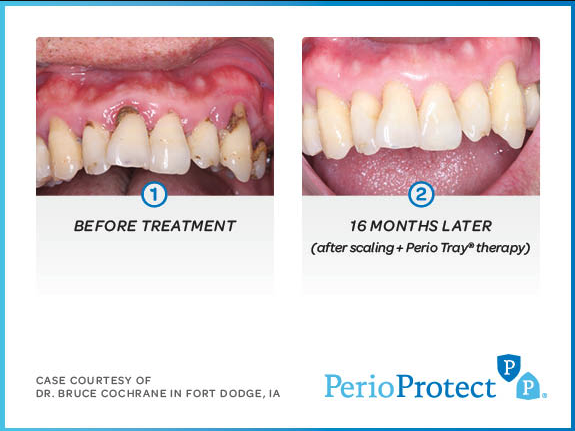 Perio Protect Before/After Image